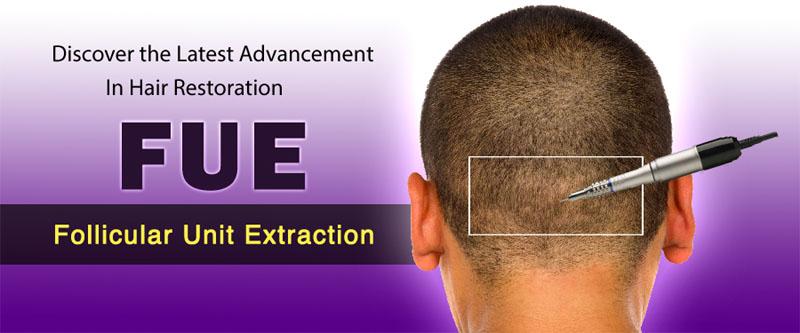 Hair transplant, FUE Hair Transplant