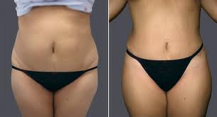 tummy tuck surgery, Abdominoplasty cost in india