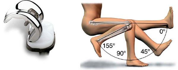 knee transplant, knee transplant surgery