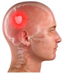brain tumor, brain tumor surgery, brain tumor causes