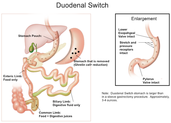 duodenal switch, duodenal switch surgery