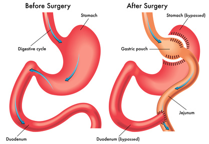 Gastric Sleeve, Gastric Sleeve surgery
