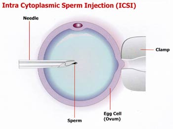icsi process, icsi treatment, ICSI, Intracytoplasmic sperm injection india