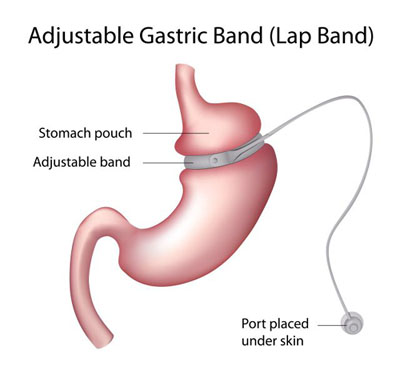 Adjustable Gastric band (Lap Band), Gastric band, Lap Band surgery cost