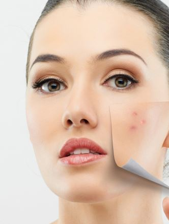 Pigmentation, Skin Pigmentation, Skin Pigmentation Treatment
