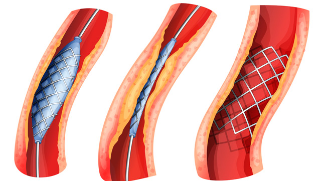 balloon angioplasty, angioplasty surgery