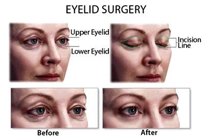 Eyelid Surgery cost, Eyelid Surgery cost india, Blepharoplasty, Blepharoplasty india
