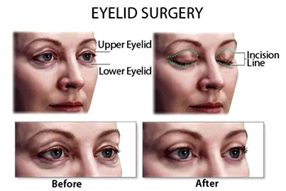 Blepharoplasty, facelift surgery, Blepharoplasty surgery, fascelift