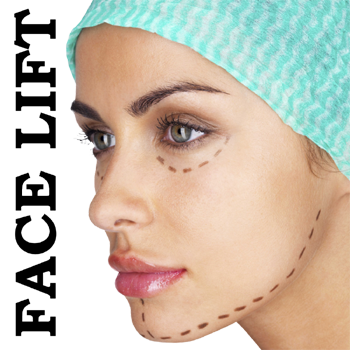 Face Lift, FaceLift surgery, Facelift
