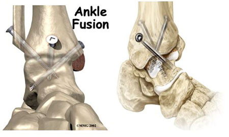 ankle fusion, ankle fusion surgery