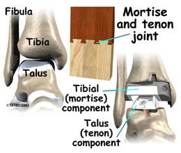 ankle joint replacement, ankle joint replacement surgery