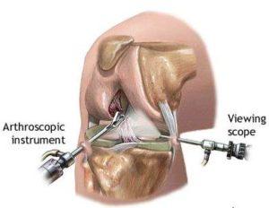 arthroscopy, arthroscopy surgery