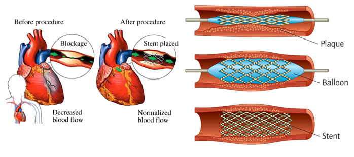 balloon angioplasty, balloon angioplasty surgery