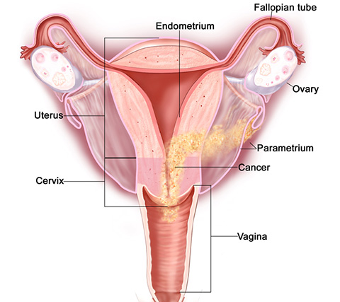 cervix cancer, cervix cancer surgery, cervix cancer treatment