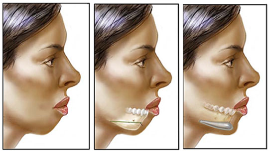 chin augmentation surgery, chin augmentation