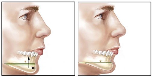 chin augmentation,chin augmentation surgery