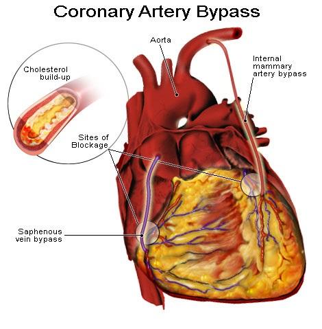 Coronary Artery Bypass Grafting, Coronary Artery Bypass surgery