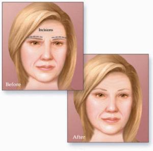 Brow Lift, Forehead lift, Forehead lift surgery