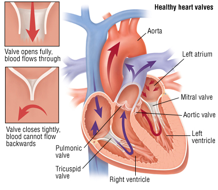 heart valve replacement surgery, heart valve replacement