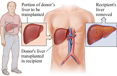 liver transplantation surgery, procedure, treatment