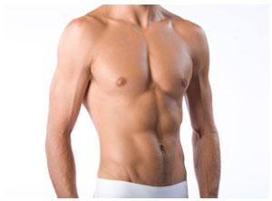 Gynecomastia, Gynecomastia surgery