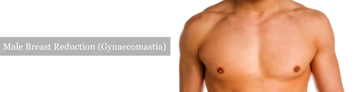 male breast reduction, male breast surgery