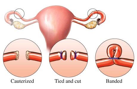tubal ligation surgery, procedure