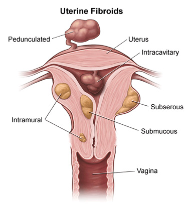 Fibroid Removal, Myomectomy surgery, procedure