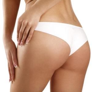 Buttock Lift, Gluteoplasty Surgery