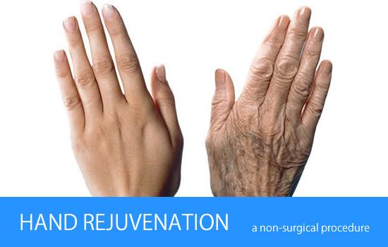 hand rejuvenation treatment, Hand Rejuvenation cost, Hand Rejuvenation for acne