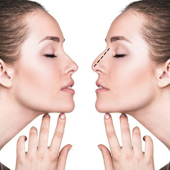 Rhinoplasty, Nose Surgery