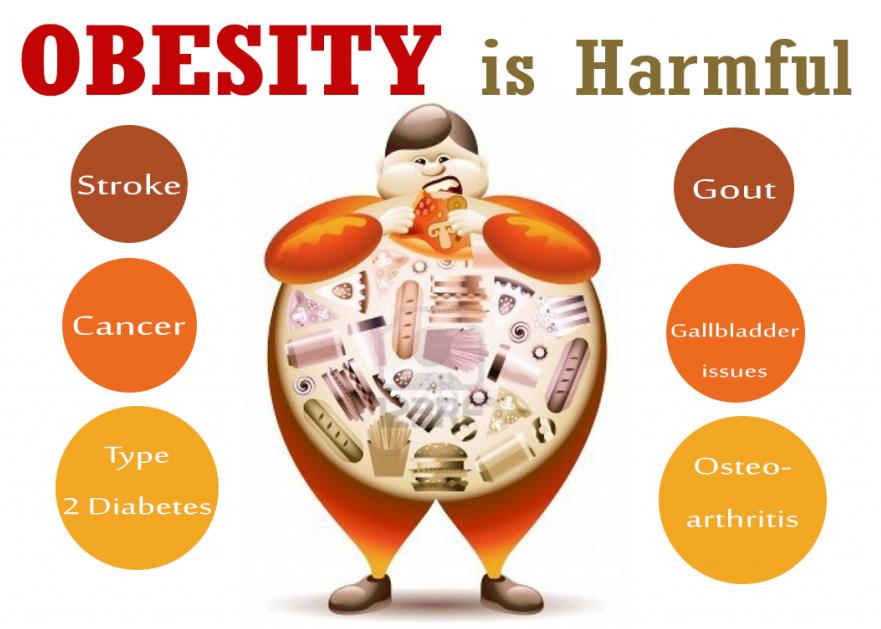 Metabolic Surgery - Obesity